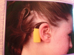 In this photo, a magnet allows a coil to stick to my head, while a processor sits on the outer part of my ear. This is entire device is the external portion of my Cochlear Implant.